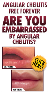 Angular Cheilitis Treatment